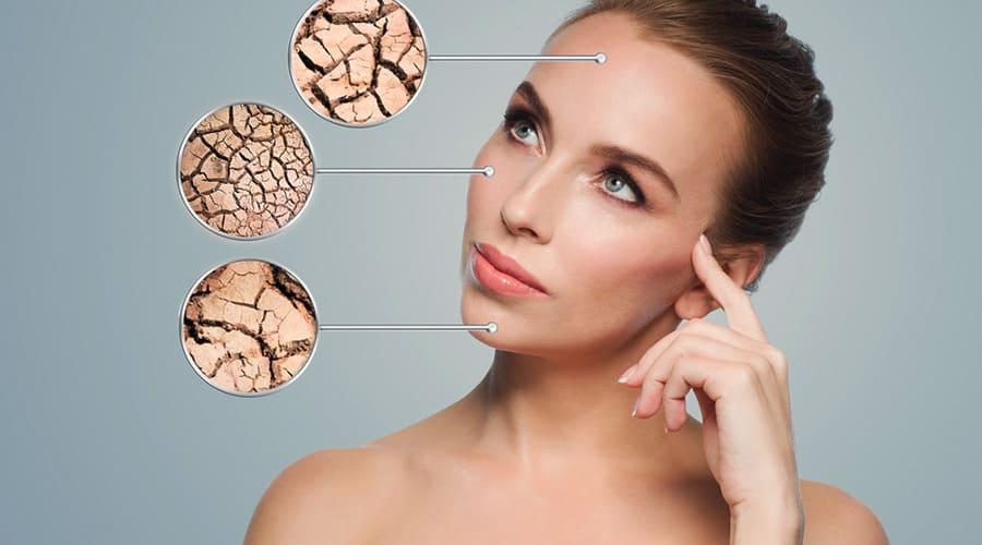 Признаки сухой кожи